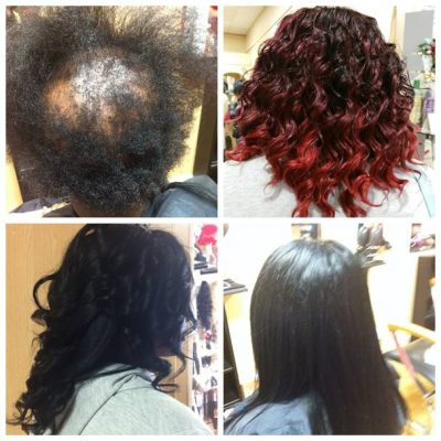 hair loss in women-hair loss treatment