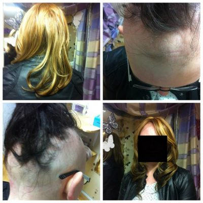 Trichology Clinic treatment for hair loss