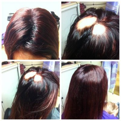 thinning hair women - patches on hair treatment