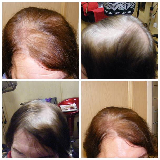 hair thinning at crown female