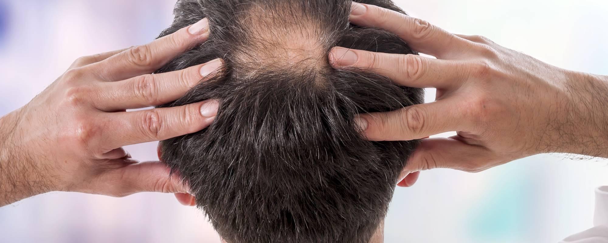 thinning hair or alopecia