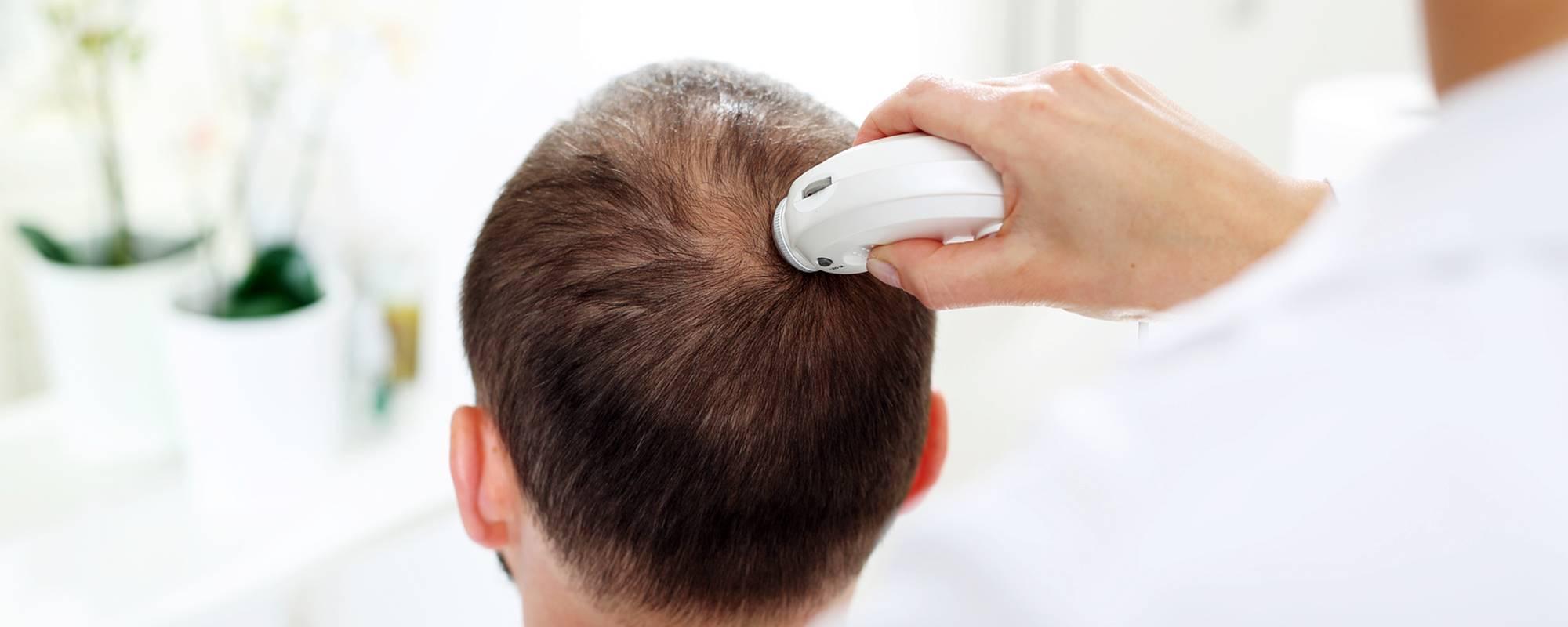 Trichologist analysing hair loss in men - clinic in Sligo & Castlebar