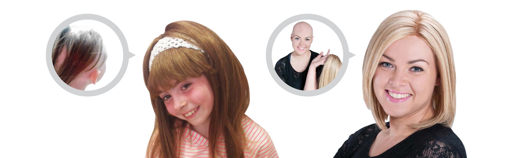 Wigs - bespoke fitting human hair wigs - trichologist