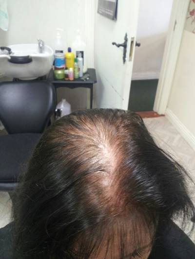 Female pattern hairloss