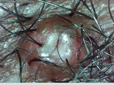 Microscopic view follicullitis nuchae